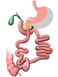 switch duodenal