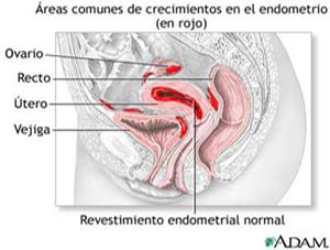 Revestimiento endometrial normal