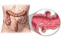 Diverticulosis