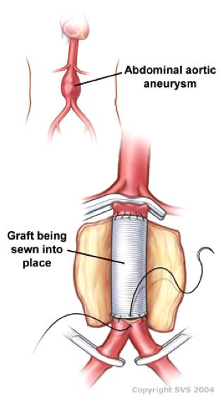 Aneurismas de Aorta Abdominal y Torácica | Centro Médico Teknon