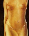 Cicatriz resultante de la abdominoplastia