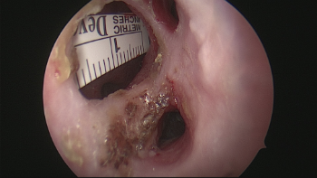 Perforación septal